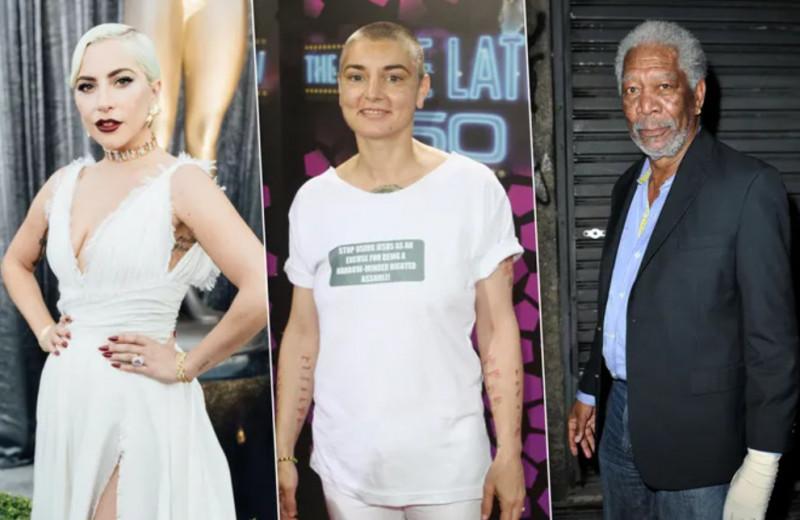 Фибромиалгия: как Леди Гага, Шинейд О'Коннор и другие живут с постоянной болью
