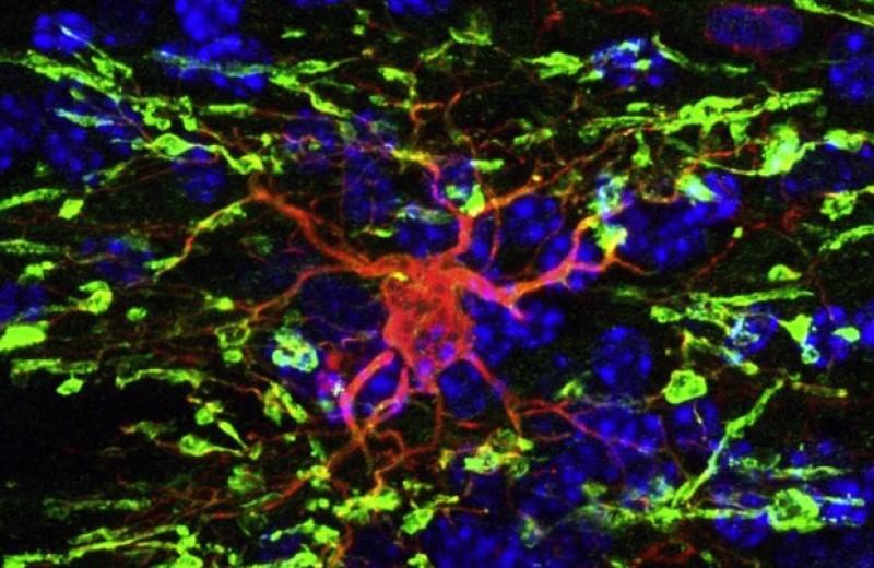Стволовые клетки человека восстановили миелиновые оболочки в мозге взрослых мышей