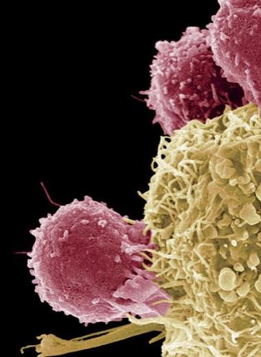 Новые методы борьбы с раком