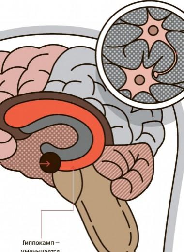 Как победить стресс нейрохакингом
