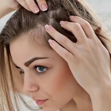 Жирная кожа головы:  22 эффективных метода борьбы