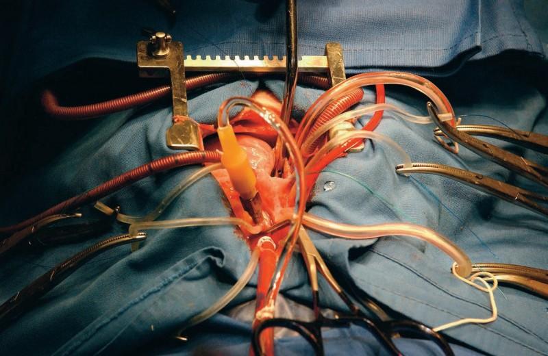 В поисках искусственного сердца
